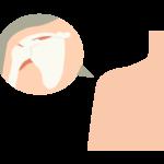 肩関節のイラスト