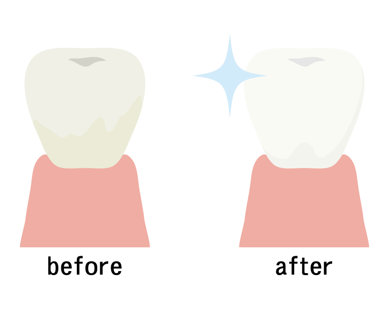 歯のホワイトニングのビフォーアフターのイラスト