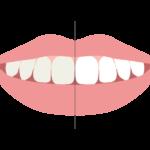 歯のホワイトニングのイラスト